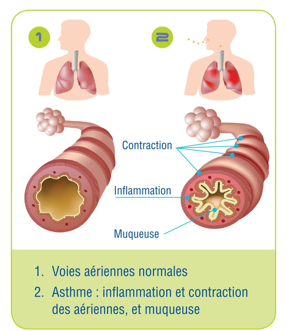 Asthma_airway_F
